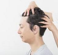 効果の無い育毛