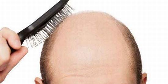 遺伝による薄毛や若ハゲのまとめ