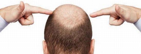 IGF-1は男性型脱毛症(AGA)にも効果的