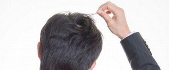 若ハゲや薄毛の対策方法