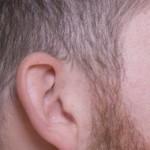 側頭部など両サイドがハゲる場合の原因と薄毛改善方法