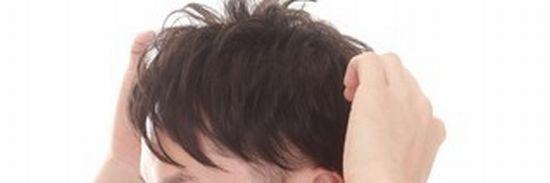 側頭部の両サイドがハゲるタイプの薄毛画像
