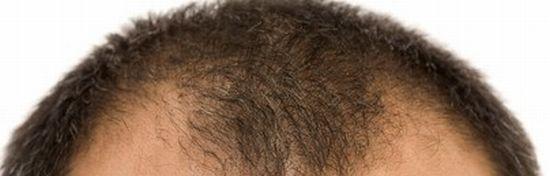 前頭部がハゲるタイプの薄毛