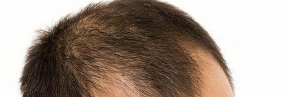 M字ハゲはどのような薄毛症状