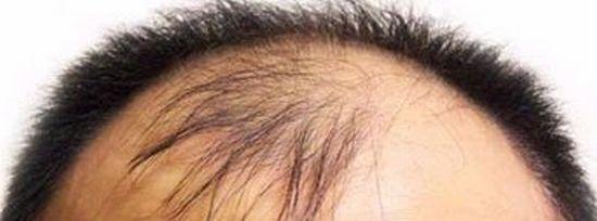 U字ハゲはどのような若ハゲの薄毛の症状