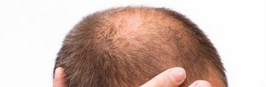 頭頂部がハゲるタイプの薄毛