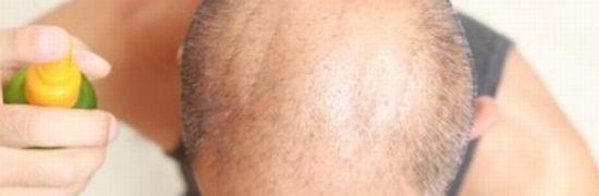頭頂部薄毛(つむじハゲ)の原因