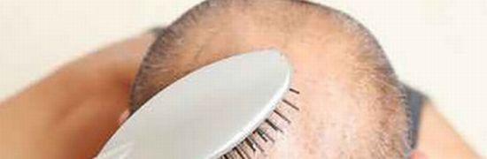 頭頂部の若ハゲや薄毛はAGAの特徴的な症状