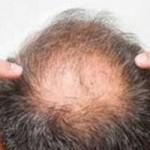 頭頂部薄毛(つむじハゲ)の初期症状と原因と改善方法