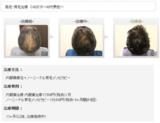 銀座総合美容クリニック(銀クリ)の治療効果3