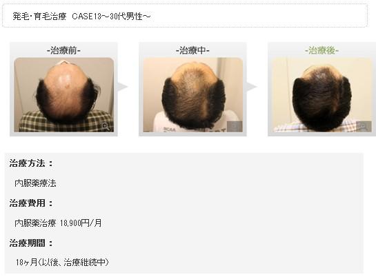 銀座総合美容クリニック(銀クリ)の治療効果5
