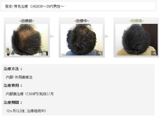 銀座総合美容クリニック(銀クリ)の治療効果1