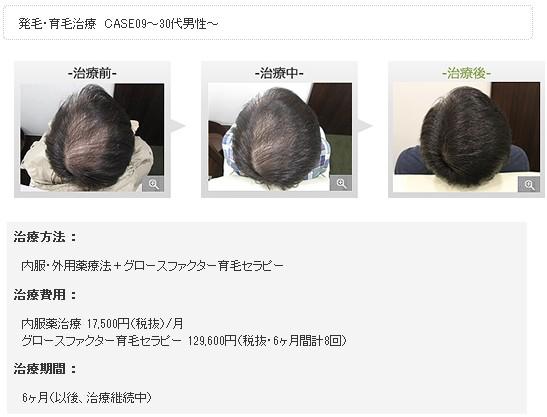 銀座総合美容クリニック(銀クリ)の治療効果2