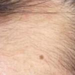 髪を産毛から太い毛に育てる方法で薄毛改善画像